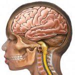 تومورهای مغزی در کودکان