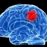 شایع ترین علائم تومورهای مغزی